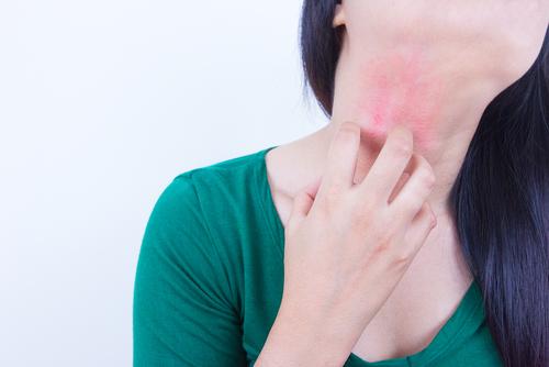 山芋 アレルギー 時間 検査