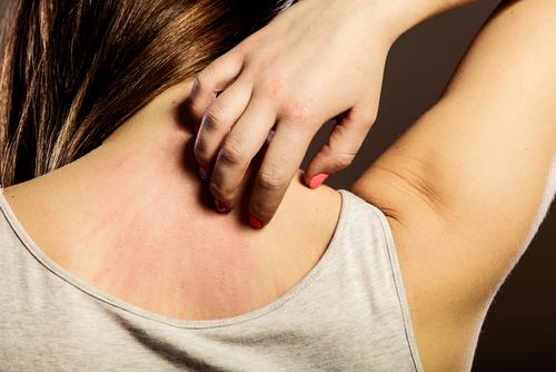 トマト アレルギー 蕁麻疹 かゆみ 湿疹